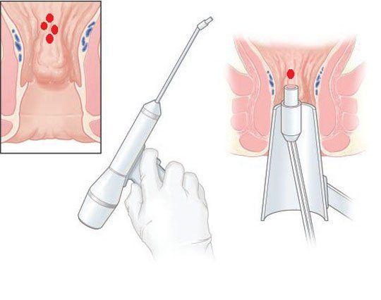 Операция по удалению геморроя лазером, современное лечение геморроидальных узлов