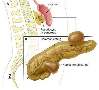 Показання до операції при панкреатиті