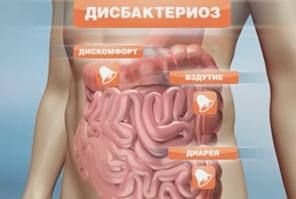Определение дисбактериоза кишечника