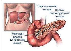 Пухлина головки і хвоста підшлункової залози