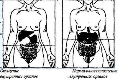 Опущение желудка - гастроптоз