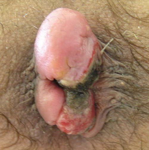 Основные симптомы геморроидального тромбоза