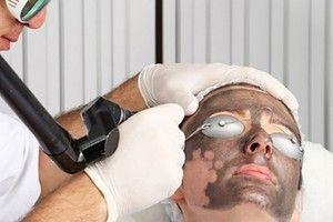 Особенности карбонового лазерного пилинга и отзывы пациентов