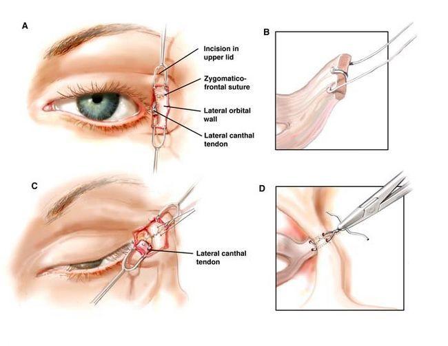 Особенности пластики азиатских век – методы коррекция разреза глаз