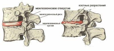 Остеохондроз — болезнь 21 века