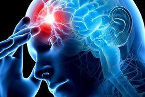 Острые нарушения мозгового кровообращения: виды, причины, помощь