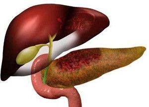Острый панкреонекроз (некроз поджелудочной железы) — причины и диагностика