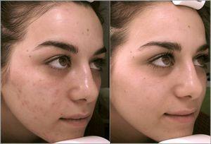 ТСА пилинг - фотографии до и после