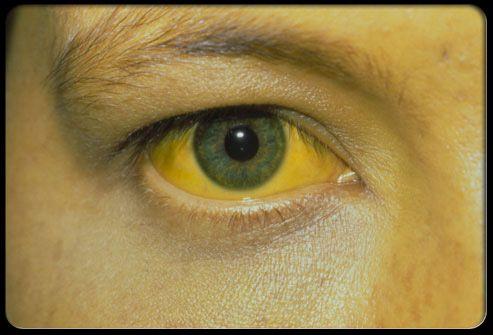 Панкреатит и гепатит с, желтуха при заболевании поджелудочной железы