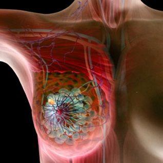 Патологическая анатомия рака молочных желез