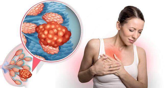 Мастопатия представляет собой разрастание фиброзной ткани