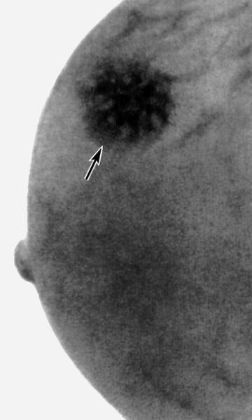 При очаговой мастопатии в груди образовываются уплотнения