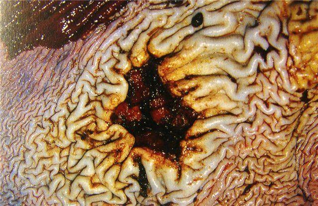 Песок в поджелудочной железе