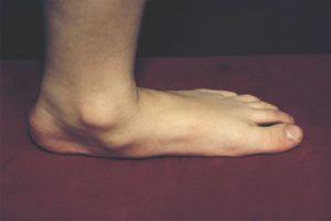 Плоскостопие: виды, симптомы и упражнения для профилактики