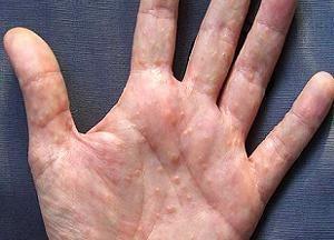 Почему появляется дисгидроз кистей рук: методы лечения и профилактика