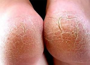 Почему появляются трещины на пятках: причины и способы лечения