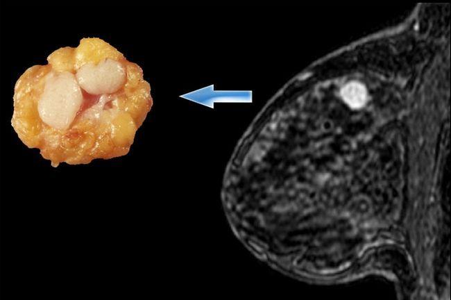 Фиброаденома в женской молочной железе