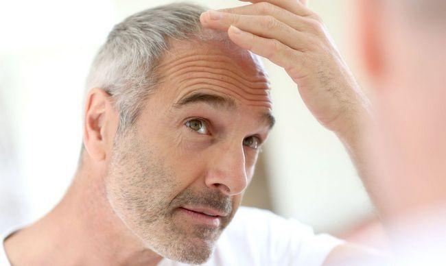 Чому випадає волосся при глистах?