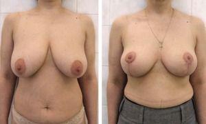 Подтяжка грудных желез: фото до и после, а также отзывы на форуме