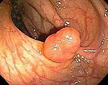 Полип желудка на широком основании