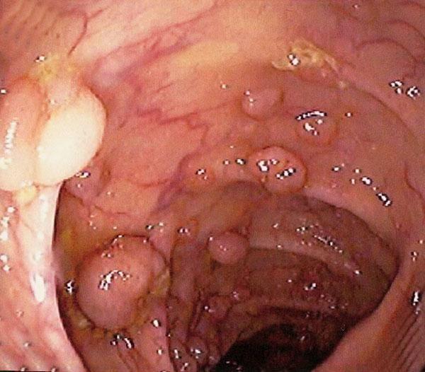 Полип кардии желудка
