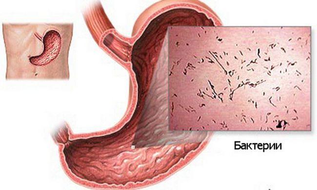 Диарея от инфекции