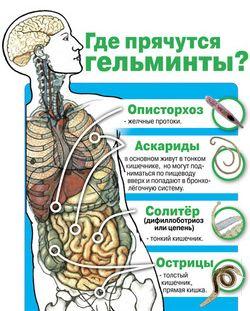Поражение гельминтами организма человека