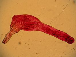 Поразка глистами, які гельмінти вражають органи людини?