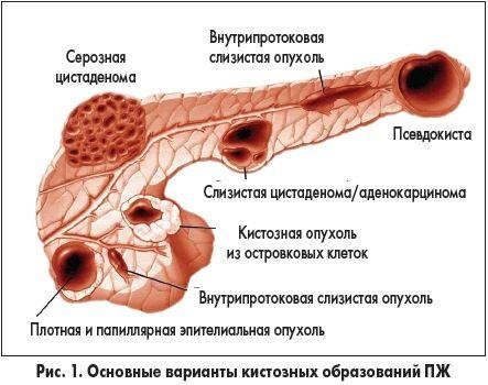 Поражение хвоста поджелудочной железы