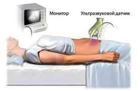 Эхоплотность поджелудочной железы