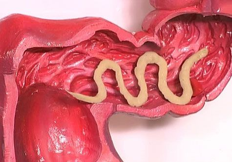 Повышенный аппетит при глистах (гельминтах)