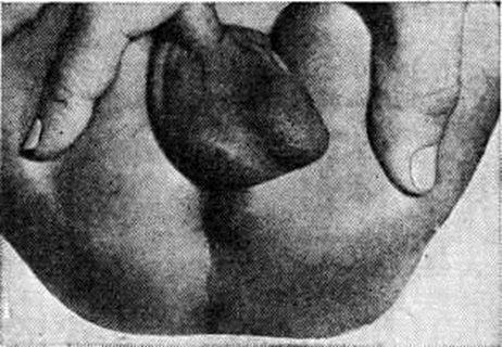 Причины детского парапроктита