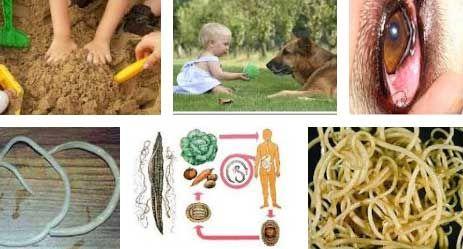 Причины появления глистов (гельминтов, гельминтоза) у ребенка и взрослого человека