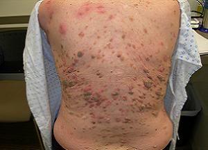 Причины появления кератоза кожи: консервативная терапия, народные средства и радикальные методы лечения