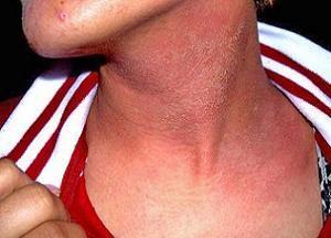 Причины появления невусов на теле: фото, методы лечения и удаления