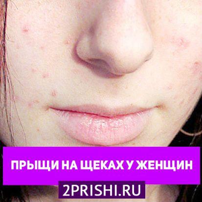 Причины появления подкожных прыщей на щеках у женщин