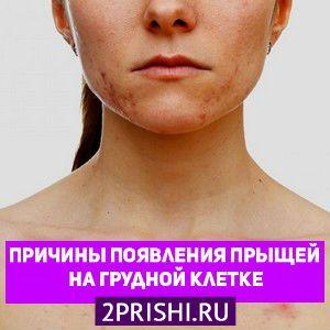 Причины появления прыщей на грудной клетке у мужчин и женщин