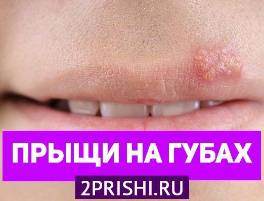 Причины появления прыщей на губах и во рту
