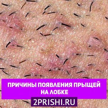 Причины появления прыщей на лобке у женщин и мужчин