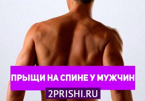 Причины появления прыщей на спине у мужчин и их лечение