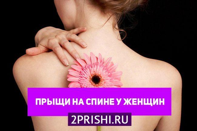 Причины появления прыщей на спине у женщин и их лечение