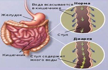 Причины поноса диареи, жидкого стула (расстройства желудка)