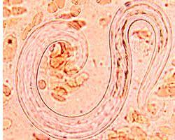 Причины стронгилоидоза, заражение и жизненный цикл строингилоидов