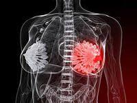 Симптомы и признаки мастопатии, а так же диагностика и лечение