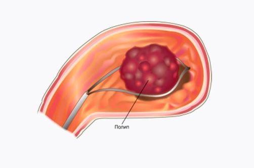 Лечение полипов
