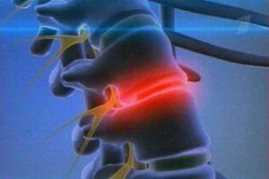 Про лечение позвоночной грыжи лазером