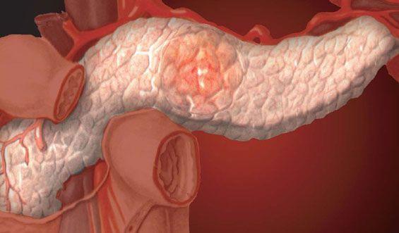 Профилактика и лечение заболеваний поджелудочной железы и хронического панкреатита