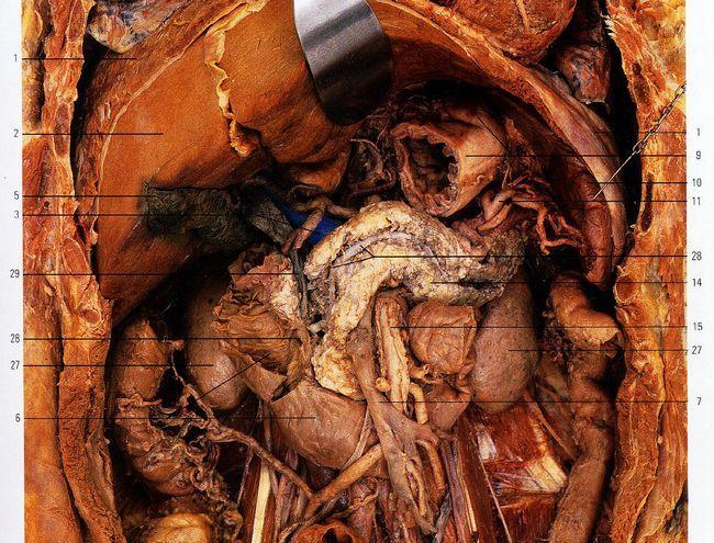 Протоки підшлункової залози (вірсунгов, канал селезінки), куди впадає (відкривається)?