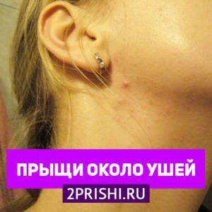 Прыщи около ушей — причины