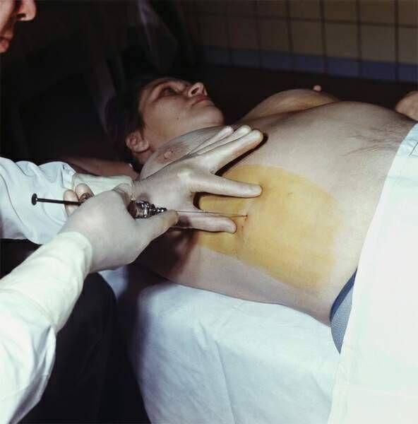 Пункция поджелудочной железы, как делают?